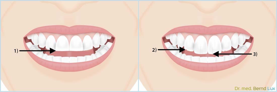 Folgen des Bruxismus - Zahnarztpraxis im Zerbster Zentrum - Zahnarzt Dr. med. Bernd Lux.