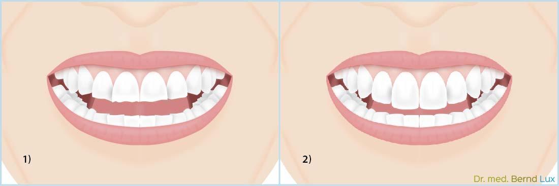Irreversible Behandlung einer Craniomandibulären Dysfunktion - Zahnarztpraxis im Zerbster Zentrum - Zahnarzt Dr. med. Bernd Lux.