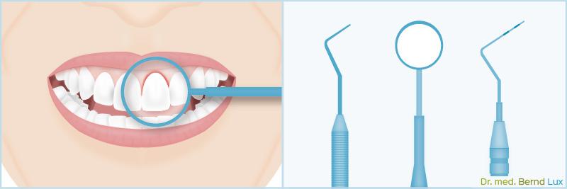 Utensilien der Parodontologie - Zahnarztpraxis im Zerbster Zentrum - Zahnarzt Dr. med. Bernd Lux.